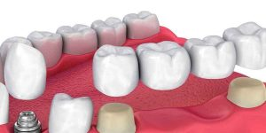Is a Dental Implant Treatment Better Than a Bridge