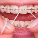 Dental Braces Worth the Effort